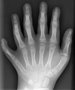 Polydactyly_01_Lhand_AP